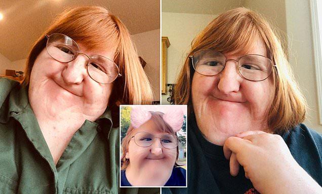 Una mujer con un trastorno óseo comparte sus fotos después de que le dijeran que era demasiado fea para publicar selfies. Un año después, dice sentirse más cómoda con su cuerpo.