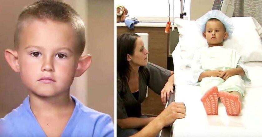 """Lo llamaban """"orejas de elfo"""" y su madre pagó una cirugía para terminar con el acoso escolar."""