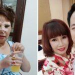Vietnamita de 62 años se casa con un hombre de 26 y se somete a costosas operaciones para verse más joven. ¡El resultado es increíble!
