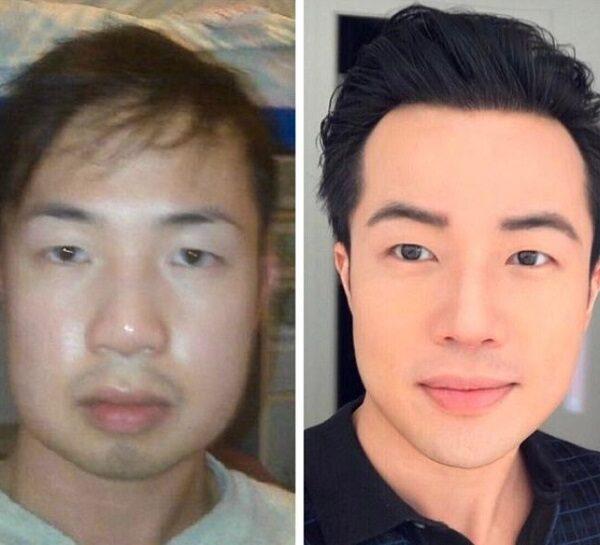 10 personas que optaron por la cirugía estética para verse mejor y sentirse felices.